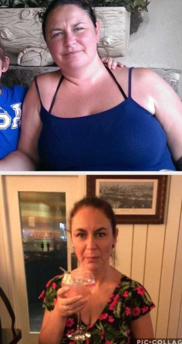 Yvonne, before and after her weight loss.