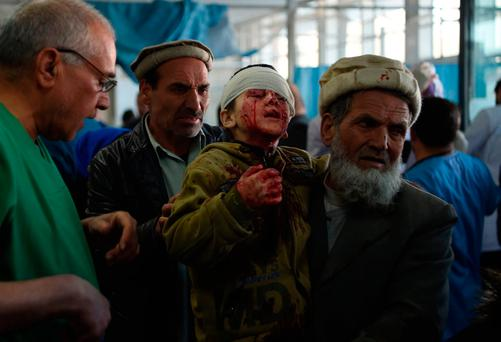 Casualty: A child wounded in yesterday's suicide blast in Kabul. Photo: AFP/Getty Images