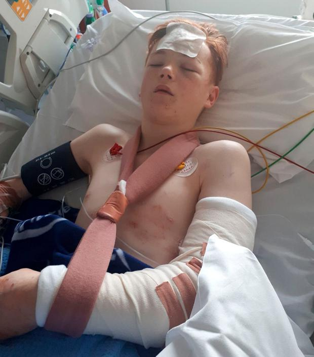 Sean O'Reilly (14) lies in a hospital bed after the hit-and-run