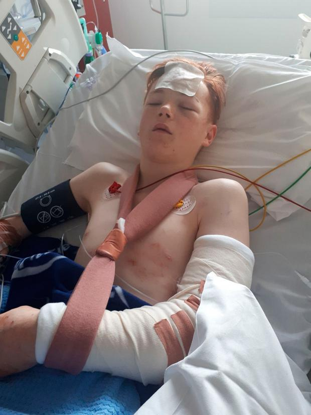Hit-and-run victim Sean O'Reilly suffered a fractured skull
