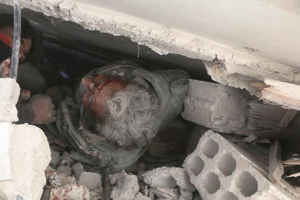 An injured man is trapped under the rubble of a damaged building in the besieged eastern Ghoua region on the outskirts of the Syrian capital Damascus (above).Photo: AP