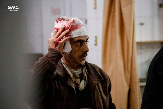An injured Syrian man who was wounded by the shelling of the Syrian government forces, waits to receive treatment at a makeshift hospital, in Ghouta, suburb of Damascus, Syria. (Ghouta Media Center via AP)