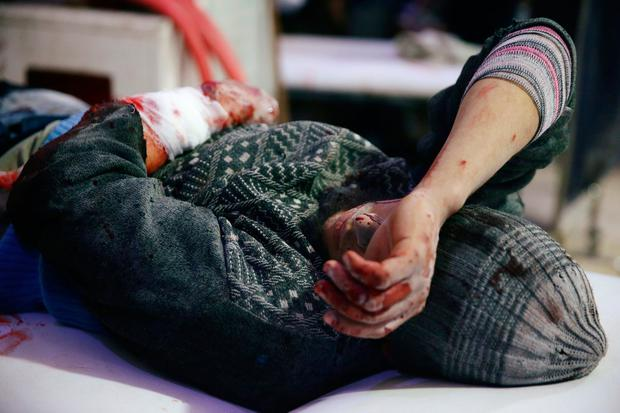 An injured man is seen at a medical point in the besieged town of Douma, Eastern Ghouta, Damascus, Syria February 20, 2018. REUTERS/Bassam Khabieh TEMPLATE OUT