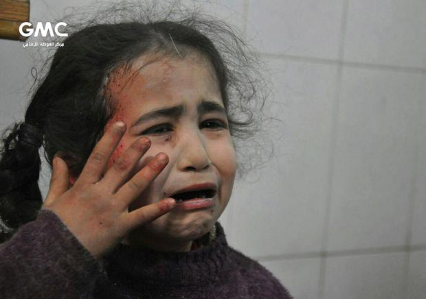 This photo released on Wednesday Feb. 21, 2018 provided by the Syrian anti-government activist group Ghouta Media Center, which has been authenticated based on its contents and other AP reporting, shows a Syrian young girl who was wounded during airstrikes and shelling by Syrian government forces, cries at a makeshift hospital, in Ghouta, suburb of Damascus, Syria. New airstrikes and shelling on the besieged, rebel-held suburbs of the Syrian capital killed at least 10 people on Wednesday, a rescue organization and a monitoring group said. (Ghouta Media Center via AP)