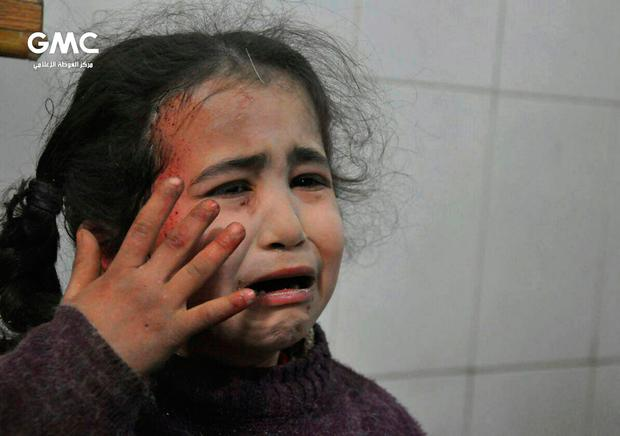 This photo released on Wednesday Feb. 21, 2018 provided by the Syrian anti-government activist group Ghouta Media Center, which has been authenticated based on its contents and other AP reporting, shows a Syrian young girl who was wounded during airstrikes and shelling by Syrian government forces, cries at a makeshift hospital, in Ghouta, suburb of Damascus, Syria. (Ghouta Media Center via AP)