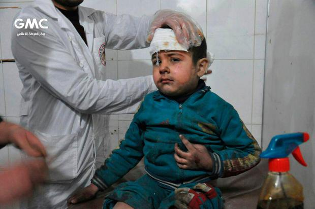 This photo released on Wednesday Feb. 21, 2018 provided by the Syrian anti-government activist group Ghouta Media Center, which has been authenticated based on its contents and other AP reporting, shows a Syrian paramedic, treats a kids who was wounded during airstrikes and shelling by Syrian government forces, at a makeshift hospital, in Ghouta, suburb of Damascus, Syria. (Ghouta Media Center via AP)