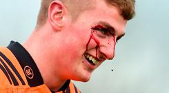 Conor Fitzgerald shows his wound after a clash of heads. Photo: Diarmuid Greene/Sportsfile