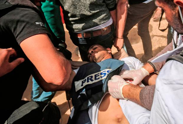 Journalist Yasser Murtaja after being shot by Israeli troops, with his 'press' jacket clearly visible. Photo: AFP/Getty