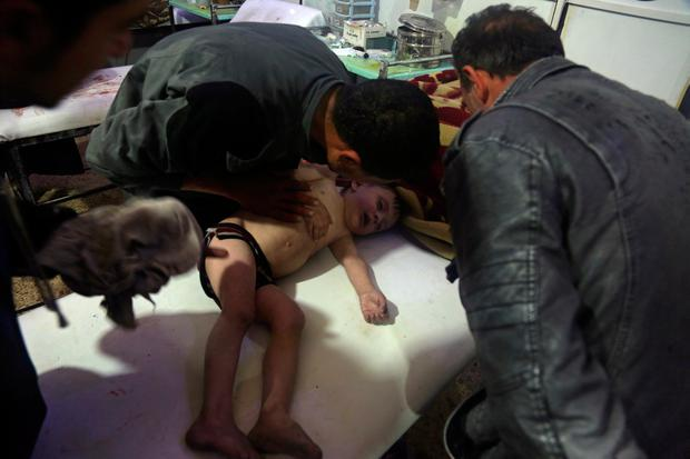 Children are treated after and alleged chemical attack on the rebel-held town of Douma. Photo: Reuters