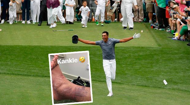 Tony Finau celebrates hole in one and (inset) his dislocated ankle