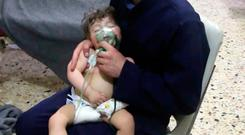 The aftermath of the chemical attack in Douma showed children being treated in a makeshift medical clinic. AP Photo