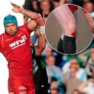 Tadhg Beirne in action against Glasgow and inset; Rhys Patchell knee was bloodied from a burn injury