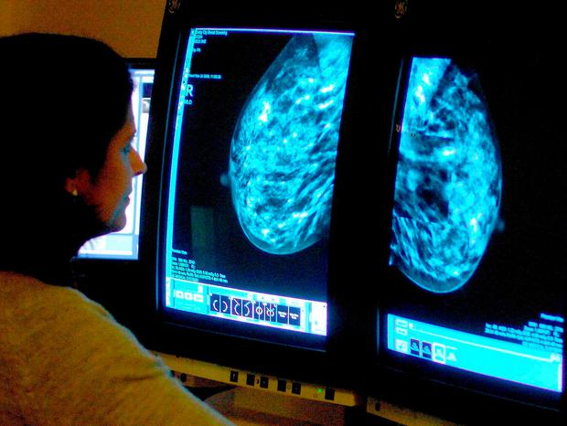 This is the first time the technique has been tried on someone with breast cancer. Stock Image: PA