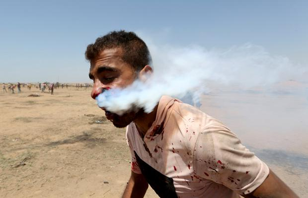 A wounded Palestinian demonstrator, Haitham Abu Sabla, 23, is hit in the face with a tear gas canister fired by Israeli troops during a protest marking al-Quds Day, (Jerusalem Day), at the Israel-Gaza border in the southern Gaza Strip June 8, 2018. REUTERS/Ibraheem Abu Mustafa