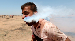 Haitham Abu Sabla (23) after he was hit in the face by a tear-gas canister fired by Israeli troops in the southern Gaza Strip yesterday. Photo: Reuters