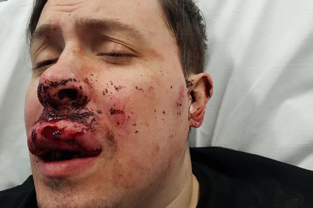 Mr McQuillan sustained extensive damages to his face, jaw and teeth. Photo: GoFundMe