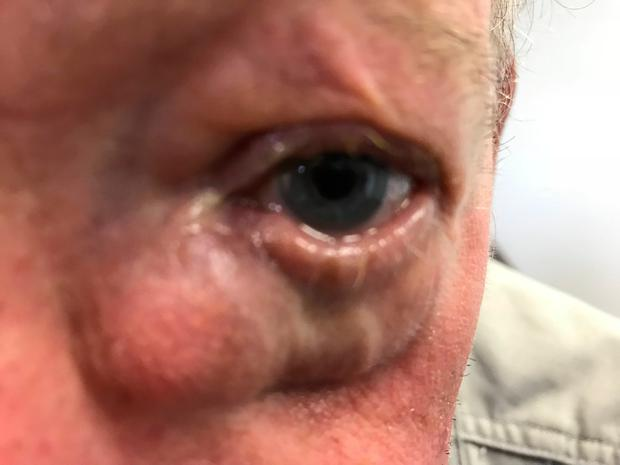 The man, who is on the outpatient list to see an ophthalmologist in Cork University Hospital, is now having problems with his vision and suffering headaches