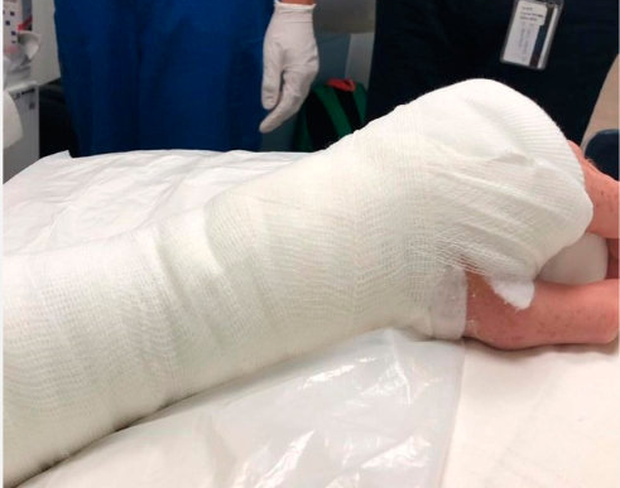 James McClean's Instagram post of his left arm in plaster after arriving in hospital.