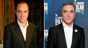 James Nesbitt in 2002, left, and in 2017, after his second hair transplant, right