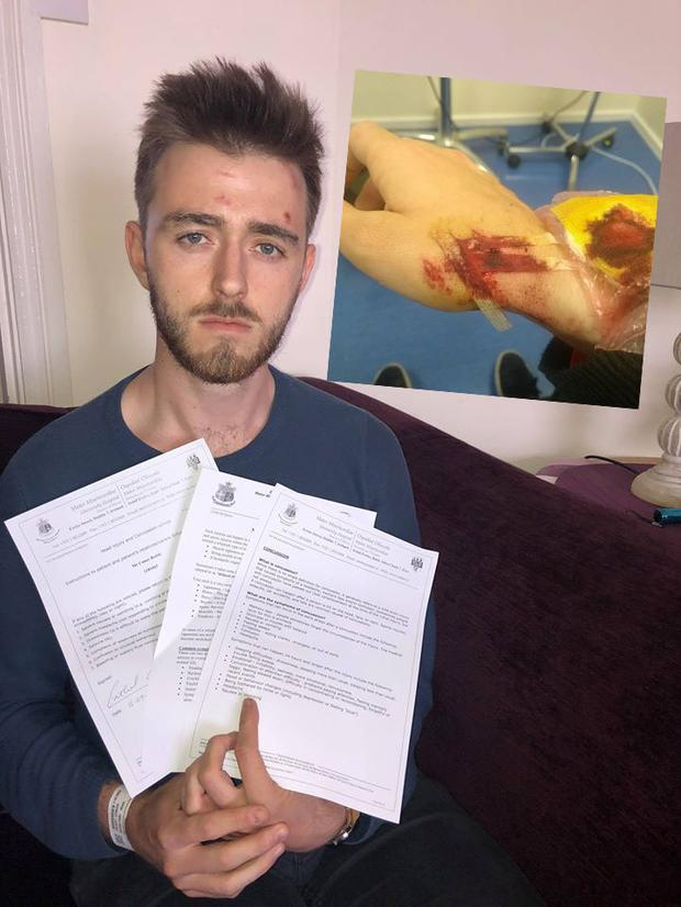 Conor Reddy was admitted to the Mater hospital as he suffered head injuries and a concussion and inset, injuries sustained by another activist