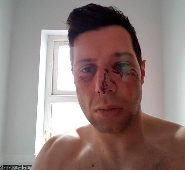 Sean Cavanagh was left concussed and with a broken nose and facial bruising after a collision during Moy's match with Edendork