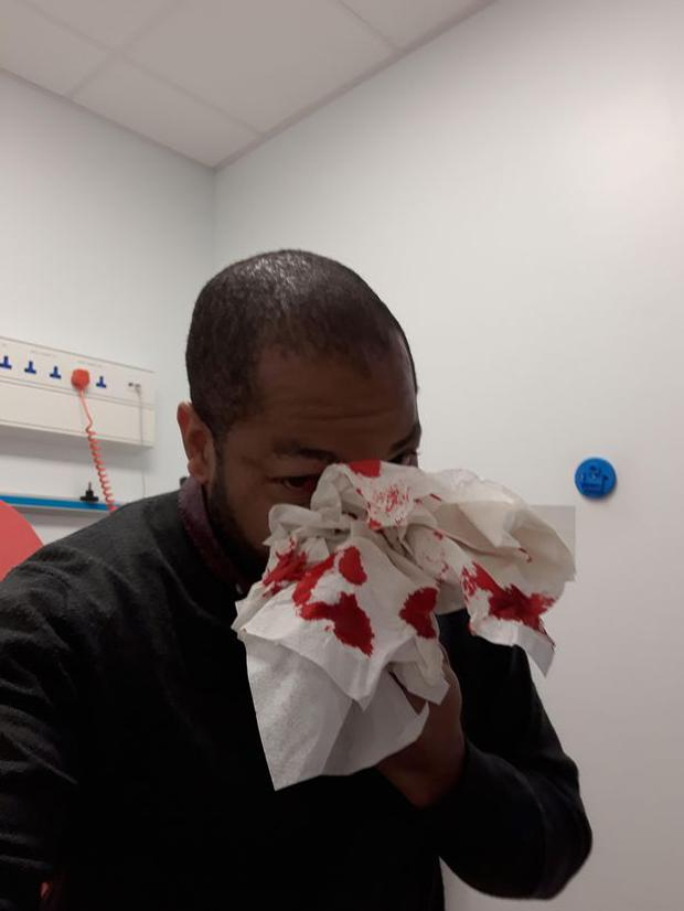 Paul Sande from Malawi was assaulted by a man on the Luas