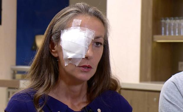 Corine Remande has been blinded in her right eye after incident at Ryder Cup CREDIT: UNIVERSAL NEWS