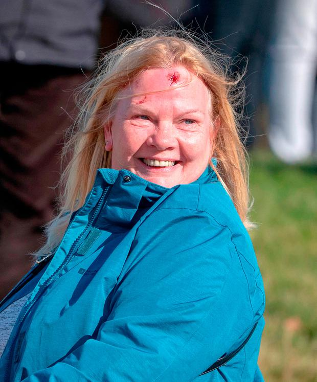 Still smiling: A spectator who was hit with Tyrell Hatton's tee shot at the 15th hole at Kingsbarns Golf Course, St Andrews. Scotland. Picture: PA