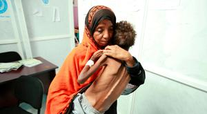 An ALL-TOO PREVENTABLE DISASTER: A woman carries her eight-year-old son, who is suffering from malnutrition in Yemen. Photo: Abdul Jabbar Zeyad/Reuters