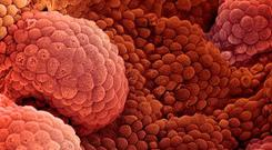Prostate cancer is the most common cancer affecting men. Stock photo: Getty
