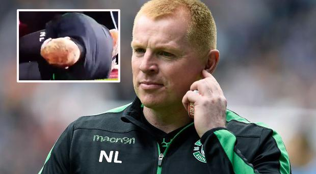 Neil Lennon called for the Hearts fan who hit him with a coin to be singled out and humiliated