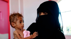 A malnourished boy at a treatment centre in Sanaa, Yemen. Photo: Reuters