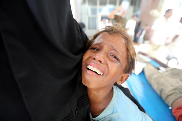 A boy cries at al-Thawra Hospital after his brother was injured in a strike near the hospital in Hodeidah, Yemen August 2, 2018. REUTERS/Abduljabbar Zeyad/File Photo