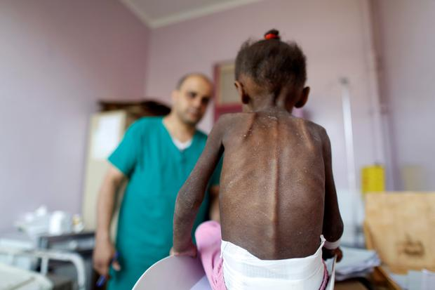 FILE PHOTO: A nurse looks as he weighs a malnourished girl at a malnutrition treatment center in Sanaa, Yemen October 7, 2018. Picture taken October 7, 2018. REUTERS/Khaled Abdullah - RC17C03A5010/File Photo