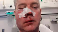 Referee Daniel Sweeney was left with serious injuries to his jaw, cheekbone and nose following the alleged attack