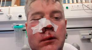 Referee Daniel Sweeney sustained serious facial injuries after an alleged attack over the weekend.
