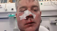 Referee Daniel Sweeney after the incident in Horseleap, Co Offaly, on Sunday