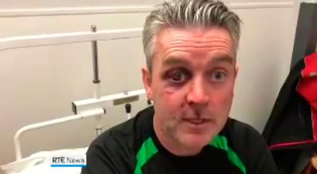 Referee Daniel Sweeney underwent gruelling five-hour surgery after savage attack