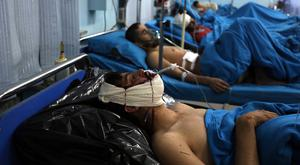 Injured men receive treatment at a hospital after a suicide bombing in Kabul, Afghanistan, Nov. 20, 2018. Afghan officials said the suicide bomber targeted a gathering of Muslim religious scholars. (AP Photo/Rahmat Gul)