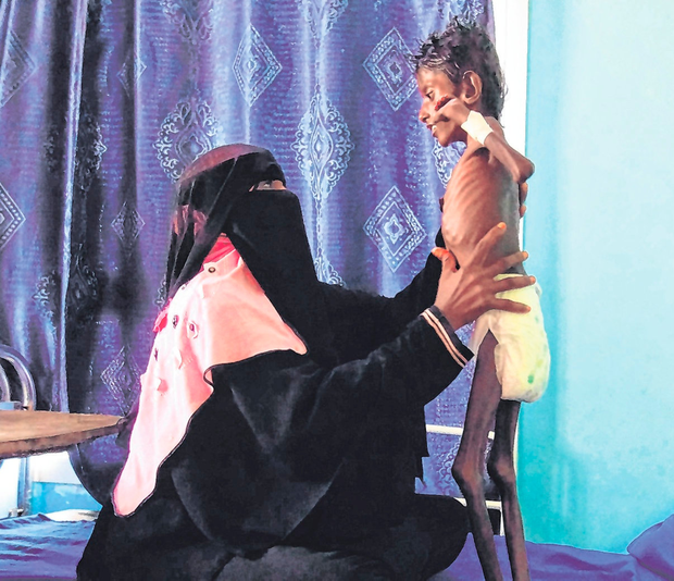 Horror: A Yemeni mother holding her son (5), who weighs 5kg, in the western province of Hodeidah. Photo: Getty Images