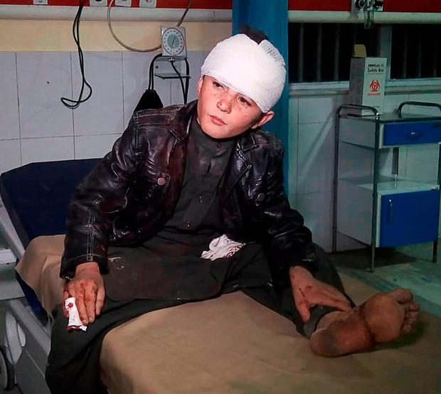 Wounded: A boy receives treatment after the car bomb blast in Kabul. Photo: AFP/Getty