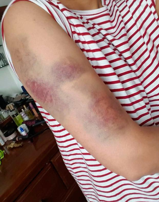 Injuries sustained in the attack