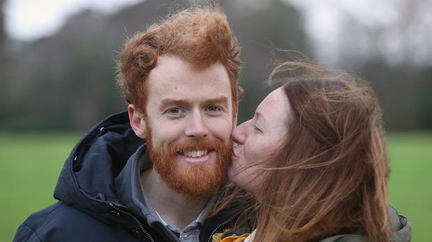 Chris and Niamh Behan take part in the annual Kiss a Ginger day at Phoenix Park in Dublin (Niall Carson/PA)