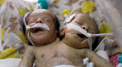 Survival struggle: Newly born conjoined twins lie in an incubator at the child intensive care unit of al-Thawra hospital in Sanaa. Photo: Khaled Abdullah