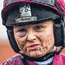 Katie O'Farrell, who features in the 'Jump Girls' documentary, shows the scars of battle at Fairyhouse last month. Photo: Ramsey Cardy/Sportsfile