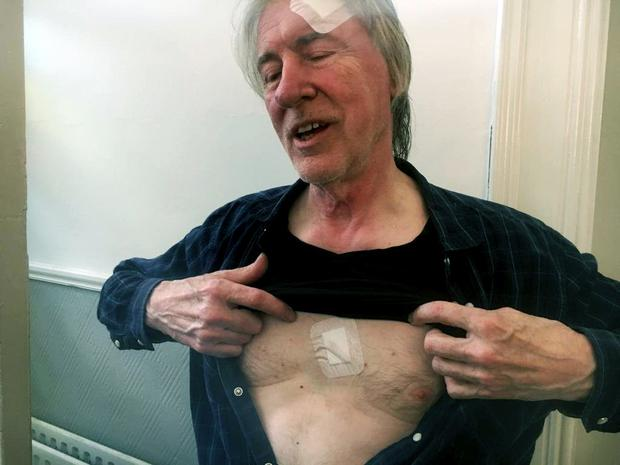 Colm Henry, a former photographer for U2, shows off his injuries after he suffered a knife attack