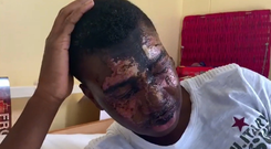 Can now see: Tega Agberhiere (16) shows his facial injuries