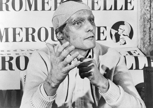Niki Lauda talking to the media at Monza six weeks after having miraculously survived a crash in Germay in 1976. Photo: AP