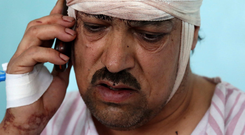 Survivor: A man talks on his phone after treatment for his injuries. Photo: AP Photo/Rahmat Gul