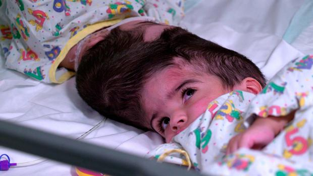Undated handout photo issued by Great Ormond Street Hospital of two-year-olds Safa and Marwa Ullah, from Charsadda in Pakistan, before a surgery to separate their heads at the hospital in London. Photo:Great Ormond Street Hospital/PA Wire
